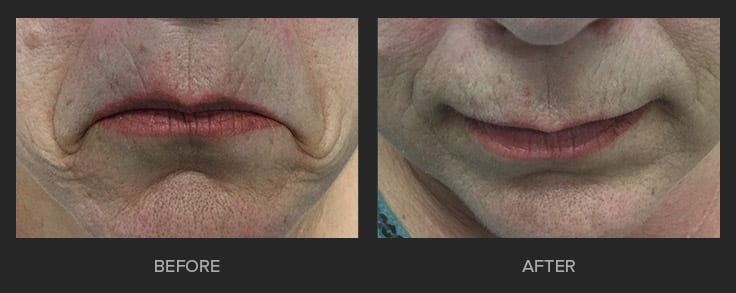Anti - Wrinkle First Choice Dental