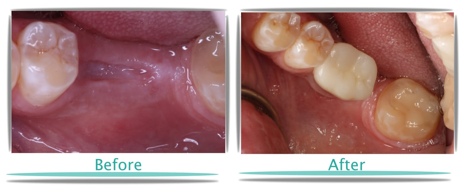 Dental Implants First Choice Dental