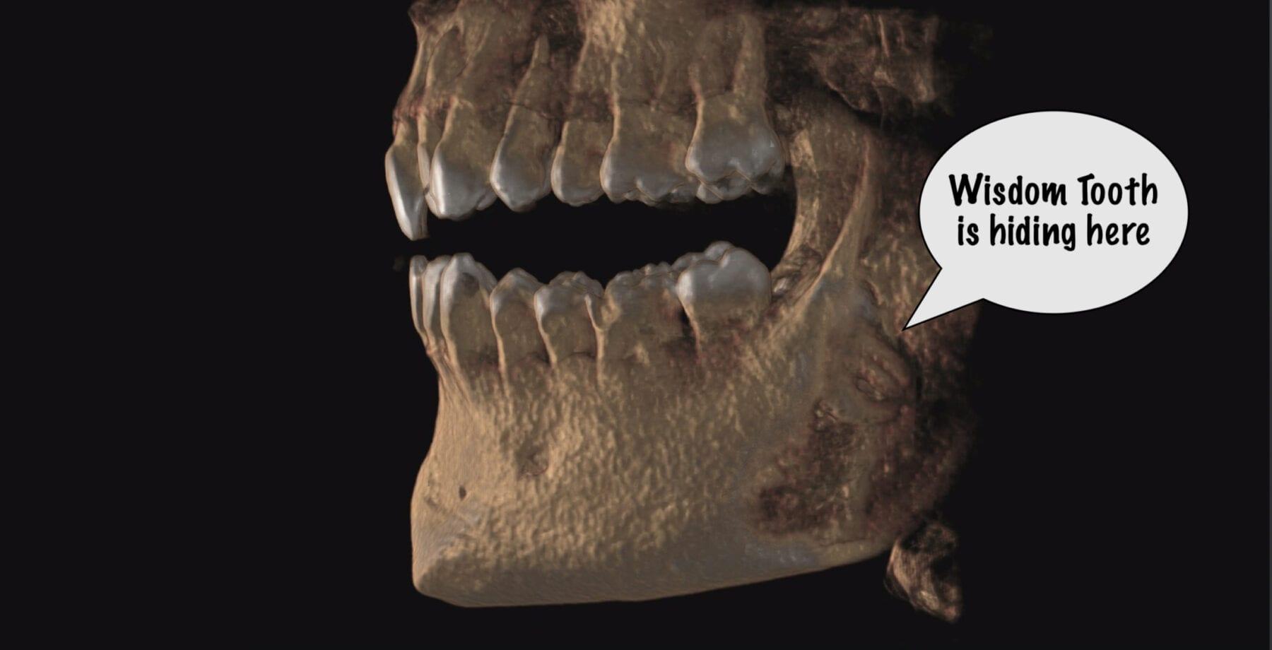Wisdom Teeth Removal First Choice Dental
